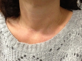 AESTHETIC RESULT OF A THYROID OPERATION
