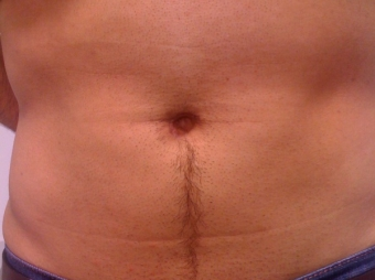 Cholecystectomy scar after 3 months