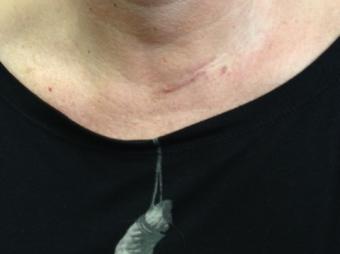 Operación de tiroides