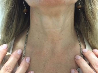 SURGERY WITHOUT SCARS