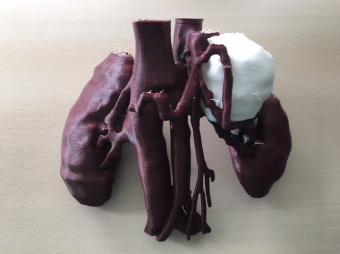 3D MODELS TO PREPARE FOR SURGERY